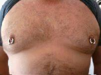 BEARDED LADY PIERCING NORTHAMPTON PROVINCETOWN BODY ART HIP SURFACE BARS PIERCING